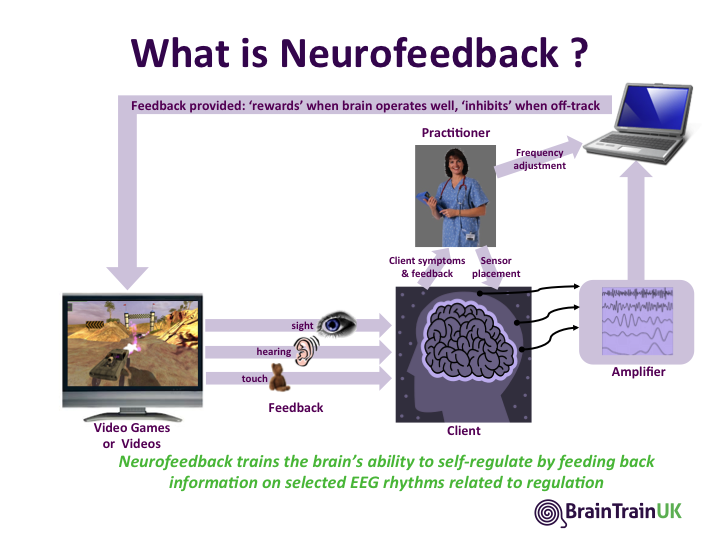picture-neurofeedback