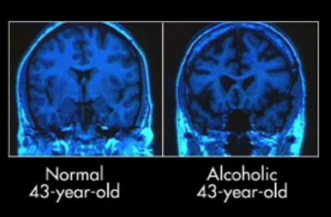 alcoholic-brain