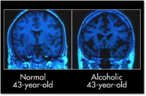 alcoholic-brain
